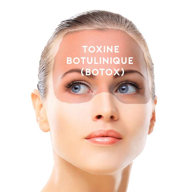 Tout savoir sur le Botox