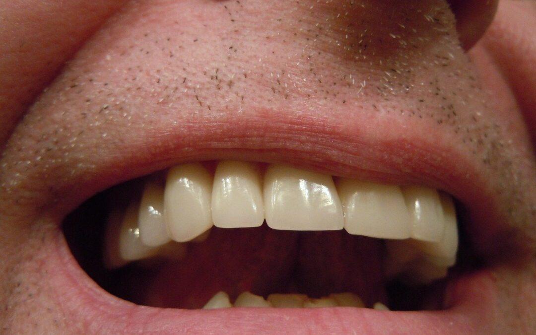 Facettes dentaires : Que sont les facettes dentaires ?