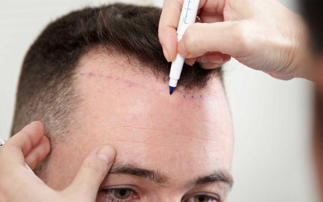 Quelles sont les grandes étapes de la greffe de cheveux?